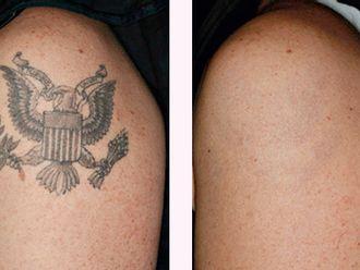 Rimozione tatuaggi-748158