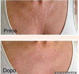 Rughe - Dott. Massimiliano Sparacello - Novamedis Day Surgery