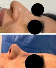 Rinoplastica - Dott. Massimiliano Sparacello - Novamedis Day Surgery