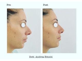 Rinoplastica - Dott. Andrea Bitonti