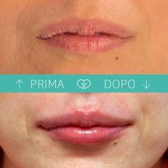 Filler labbra - Dott.ssa Giuliana Giudice