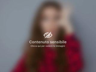 Rinoplastica Antonietta Russo e foto  matrimonio -
