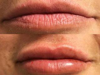 Filler Labbra pre e post