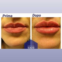 Filler labbra - Dott. ALFIO SCALISI - 4 Spa Medical Clinic