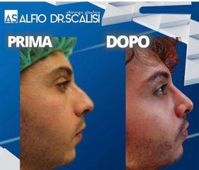 Rinoplastica - Dott. ALFIO SCALISI - 4 Spa Medical Clinic