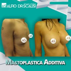 Mastoplastica additiva - Dott. ALFIO SCALISI - 4 Spa Medical Clinic