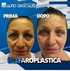 Blefaroplastica - Dott. ALFIO SCALISI - 4 Spa Medical Clinic