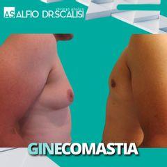 Ginecomastia - Dott. ALFIO SCALISI - 4 Spa Medical Clinic