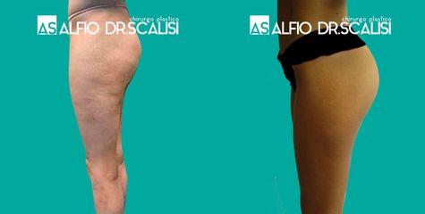 Cellulite - Dott. ALFIO SCALISI - 4 Spa Medical Clinic