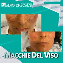 Macchie della pelle - Dott. ALFIO SCALISI - 4 Spa Medical Clinic
