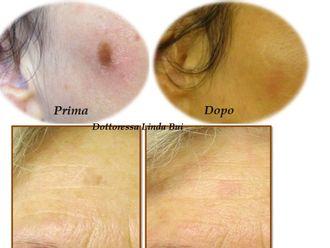 Laserterapia-749943