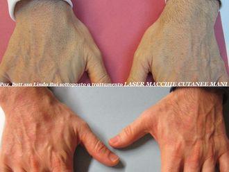 Laserterapia-768107