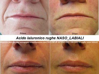 Acido ialuronico-768119
