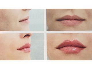 Filler labbra - Dott. Roberto Lualdi