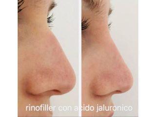 Rinofiller - Dott. Roberto Lualdi