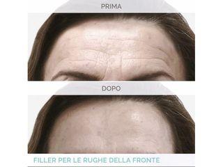 Botulino - Dott. Roberto Lualdi
