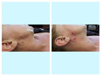 Laserterapia-752811