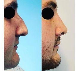 Rinomegalia prima e dopo
