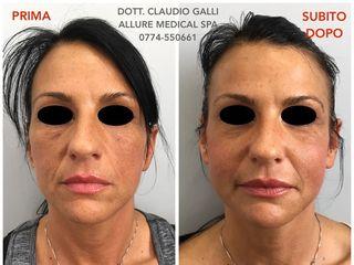 Lipofilling viso prima dopo