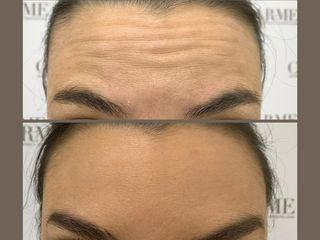 Botox fronte prima e dopo