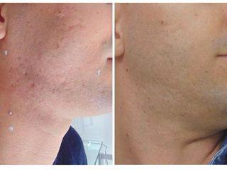 segni acne prima e dopo