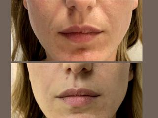 Rughe nasogeniene prima e dopo