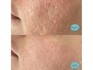 Cicatrici acne prima e dopo