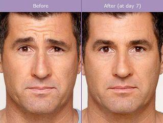 Botox prima e dopo