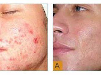Dermatologia estetica-749031