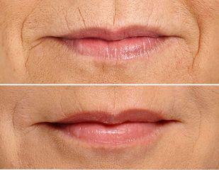 Ringiovanimento labbra