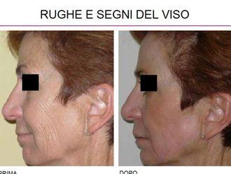 Rughe-757289