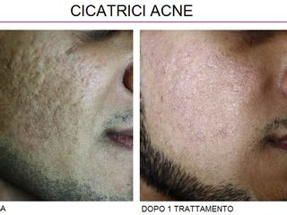 Rimozione cicatrici acne