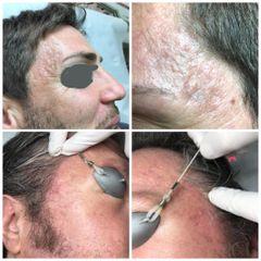 Cicatrici - Dott Luigi Petti