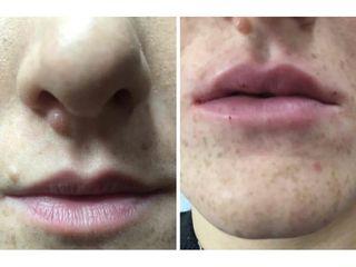Filler labbra - Dott Luigi Petti
