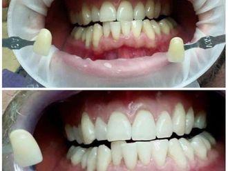 Dentisti-764981