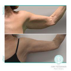 Liposuzione - Dr. Juri Tassinari