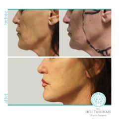 Lifting viso e collo - Dr. Juri Tassinari