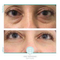Eliminare occhiaie - Dr. Juri Tassinari