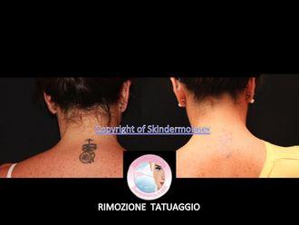 Rimozione tatuaggi-745114