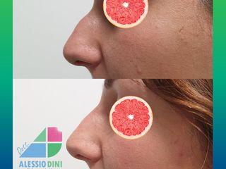 Modellamento del profilo del naso con acido ialuronico