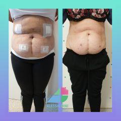 Carbossiterapia post liposuzione