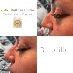 Rinofiller - Dott.ssa Federica Giuzio-Medico Chirurgo Estetico