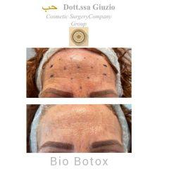 Botulino - Dott.ssa Federica Giuzio-Medico Chirurgo Estetico