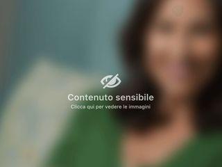 Mastoplastica additiva - Dott.ssa Federica Giuzio