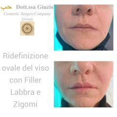 Filler labbra e zigomi - Dott.ssa Federica Giuzio