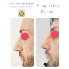 Rinoplastica - Dott.ssa Federica Giuzio