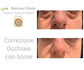 Eliminare occhiaie - Dott.ssa Federica Giuzio