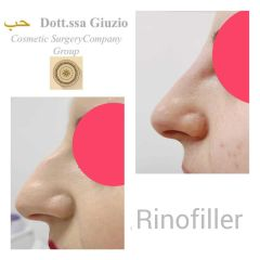 Rinofiller - Dott.ssa Federica Giuzio