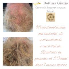 Trapianto capelli - Dott.ssa Federica Giuzio