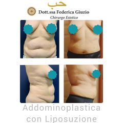 Addominoplastica - Dott.ssa Federica Giuzio